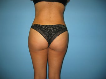 Brazilian Buttock Lift after 587696