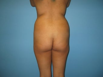Brazilian Buttock Lift before 587696
