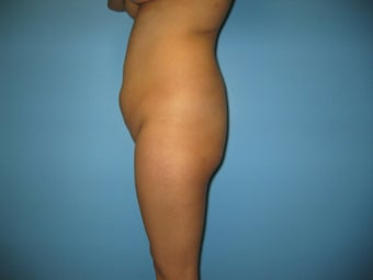 Brazilian Buttock Lift 587696