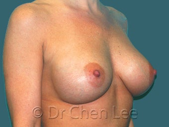 Mild Sag and Volume Loss arising in the Aging Breast 930234