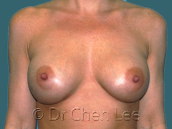 Mild Sag and Volume Loss arising in the Aging Breast after 930234