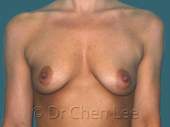 Mild Sag and Volume Loss arising in the Aging Breast before 930234