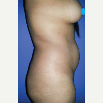 25-34 year old woman treated with Liposuction before 3374887