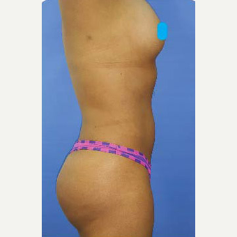 25-34 year old woman treated with Liposuction after 3374887
