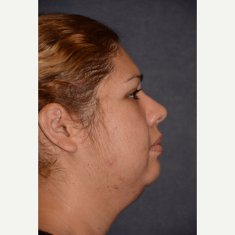 25-34 year old woman treated with Neck Lift before 3490138