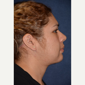 25-34 year old woman treated with Neck Lift after 3490138