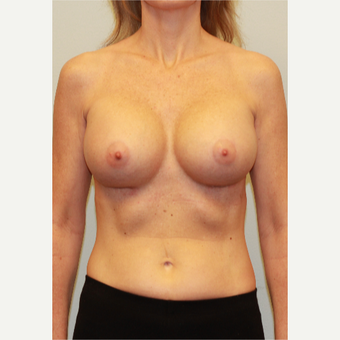 25-34 year old woman treated with Breast Implants after 3026941