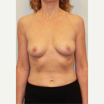 25-34 year old woman treated with Breast Implants before 3026941