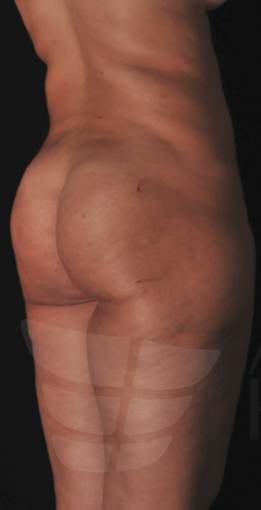 Cellulite Treatment with Vaser Lipo before 1500600