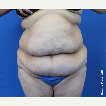 35-44 year old woman treated with Tummy Tuck before 3679839