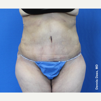 35-44 year old woman treated with Tummy Tuck after 3679839