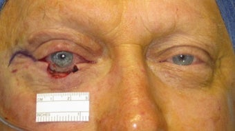 Eyelid skin cancer surgery before 875946