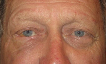 Eyelid skin cancer surgery after 875946