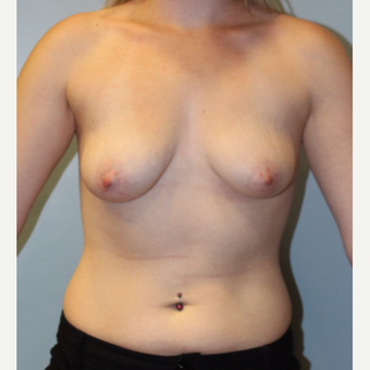 25-34 year old woman treated with Breast Augmentation before 3811414