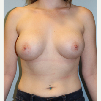 25-34 year old woman treated with Breast Augmentation after 3811414