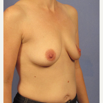 35-44 year old woman treated with Breast Augmentation before 3106738