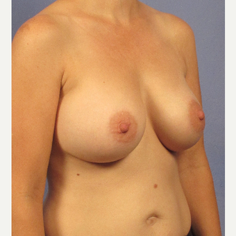35-44 year old woman treated with Breast Augmentation after 3106738