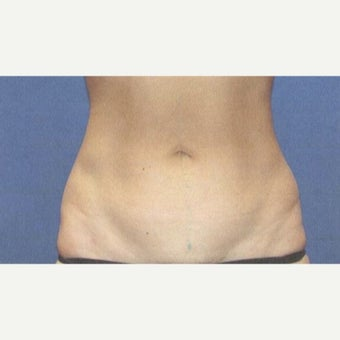 25-34 year old woman treated with Liposuction after 1785407