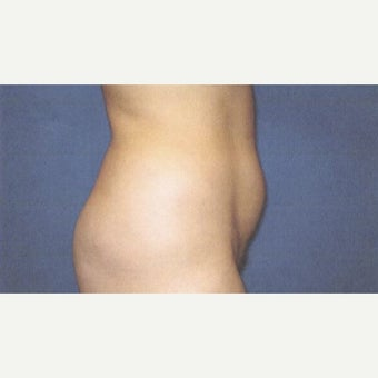 25-34 year old woman treated with Liposuction 1785407