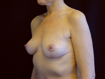Breast Lift with Short Vertical Scar after 1050363