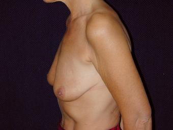Breast Lift with Short Vertical Scar before 1050363