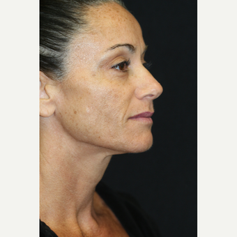 46 year old woman treated with Laser Peel