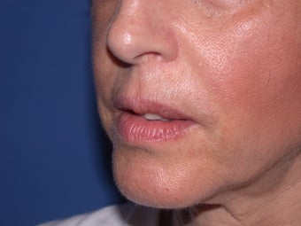 Injectable Fillers after 205086