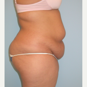 20 year old woman treated with Tummy Tuck before 3375472