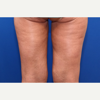 35-44 year old woman treated with Liposuction after 3258749