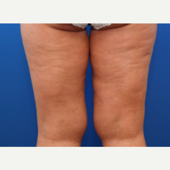 35-44 year old woman treated with Liposuction before 3258749