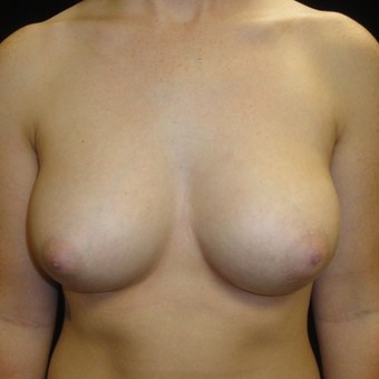 25-34 year old woman treated with Breast Augmentation after 3823069