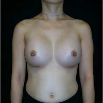 25-34 year old woman treated with Breast Augmentation after 3625168