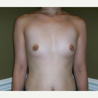 25-34 year old woman treated with Breast Augmentation before 3625168