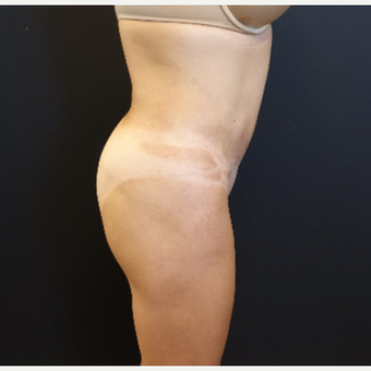 35-44 year old woman treated with Butt Augmentation before 3234502
