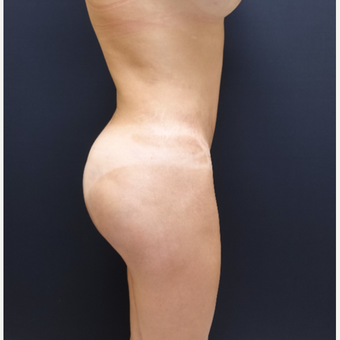 35-44 year old woman treated with Butt Augmentation after 3234502