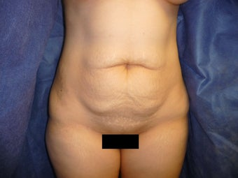 32 yo woman underwent TT with mesh exclusively by Gary Horndeski MD before 1235643
