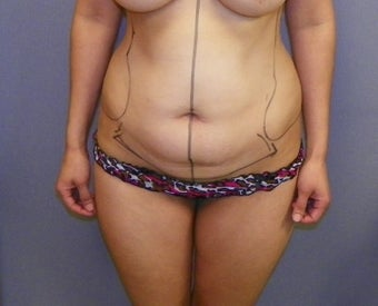 Tummy Tuck before 1191503