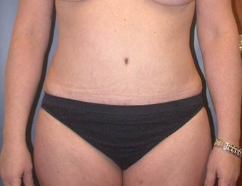 41 year old female who had tummy tuck with liposuction after 1110923