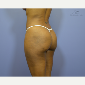 35-44 year old woman treated with Butt Augmentation after 3421231