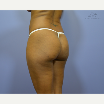 35-44 year old woman treated with Butt Augmentation before 3421231