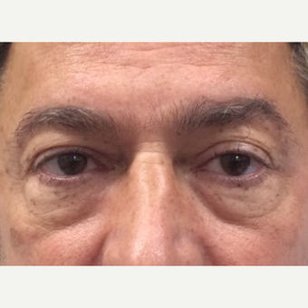 Lower blepharoplasty with fat repositioning before 2831790