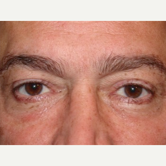 Lower blepharoplasty with fat repositioning after 2831790
