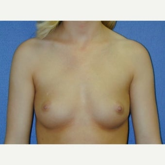 Under 25  year old woman ,weight 100-115 lbs treated with Breast Augmentation 1711634