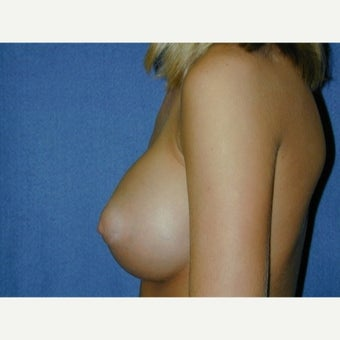 Under 25  year old woman ,weight 100-115 lbs treated with Breast Augmentation after 1711634