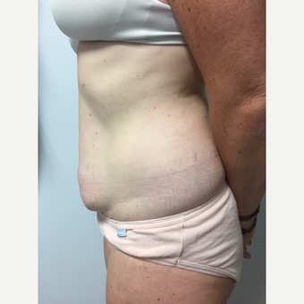41 year old woman treated with Tummy Tuck and Liposuction before 3822283