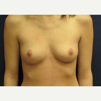 18-24  year old woman treated with Breast Augmentation before 3775508