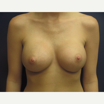 18-24  year old woman treated with Breast Augmentation after 3775508