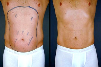 Pure Tumescent Liposuction before 996368