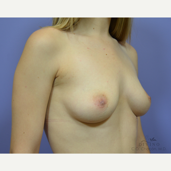 25-34 year old woman treated with Breast Augmentation before 3386449
