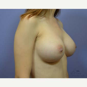 25-34 year old woman treated with Breast Augmentation after 3386449